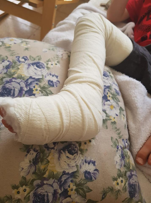 רגלו השבורה של הילד. צילום: פרטי